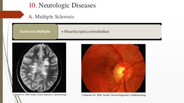 10. Neurologic Diseases A. Multiple Sclerosis