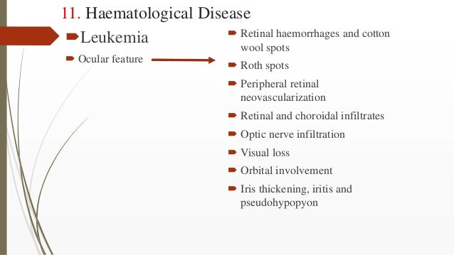 11. Haematological Disease Leukemia  Ocular feature  Retinal haemorrhages and cotton wool spots  Roth spots  Peripher...