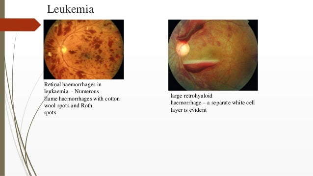 Leukemia Retinal haemorrhages in leukaemia. - Numerous flame haemorrhages with cotton wool spots and Roth spots large retr...