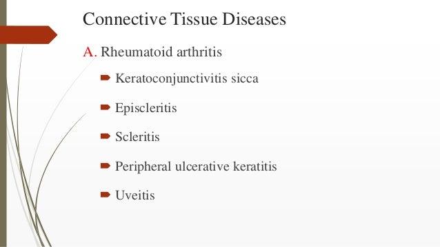 Connective Tissue Diseases A. Rheumatoid arthritis  Keratoconjunctivitis sicca  Episcleritis  Scleritis  Peripheral ul...