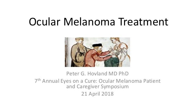 Ocular Melanoma Treatment Peter G. Hovland MD PhD 7th Annual Eyes on a Cure: Ocular Melanoma Patient and Caregiver Symposi...