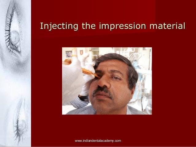 Injecting the impression material  www.indiandentalacademy.com