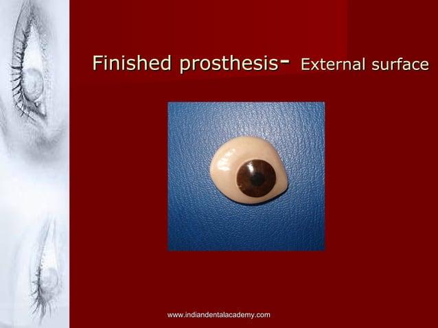 Finished prosthesis- External surface  www.indiandentalacademy.com