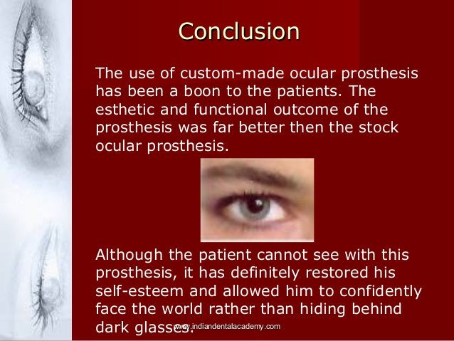 Conclusion The use of custom-made ocular prosthesis has been a boon to the patients. The esthetic and functional outcome o...
