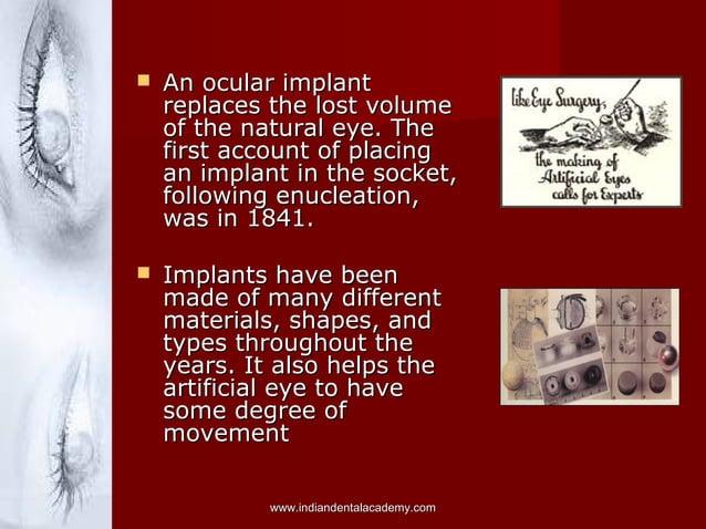  An ocular implantAn ocular implant replaces the lost volumereplaces the lost volume of the natural eye. Theof the natura...