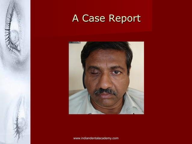 A Case ReportA Case Report www.indiandentalacademy.comwww.indiandentalacademy.com