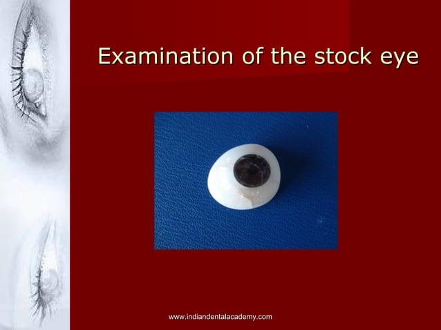Examination of the stock eyeExamination of the stock eye www.indiandentalacademy.comwww.indiandentalacademy.com