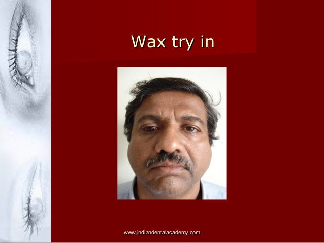 Wax try inWax try in www.indiandentalacademy.comwww.indiandentalacademy.com
