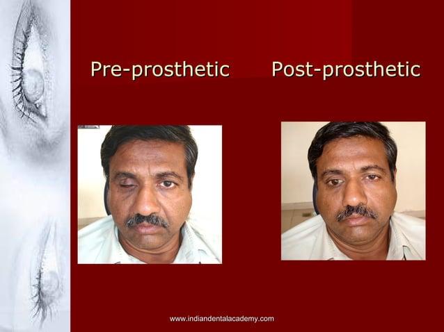 Pre-prosthetic Post-prostheticPre-prosthetic Post-prosthetic www.indiandentalacademy.comwww.indiandentalacademy.com