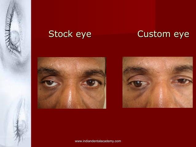 Stock eye Custom eyeStock eye Custom eye www.indiandentalacademy.comwww.indiandentalacademy.com