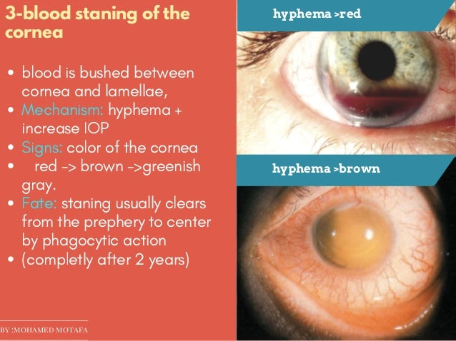 Ocular trauma ..effect on cornea and sclera