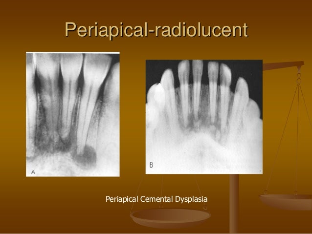 PERIAPICAL RADIOLUCENCY EPUB