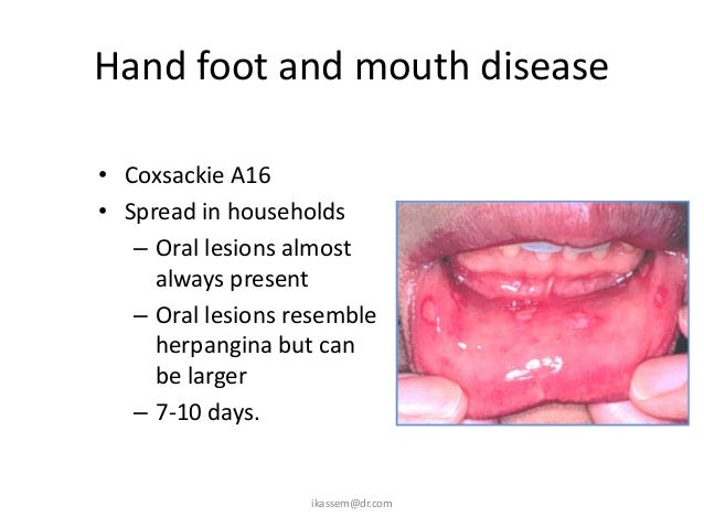 """analysis of the foot and mouth disease causes symptoms and cures Pinched nerve – symptoms, causes, treatment and home remedies pinched nerve – symptoms, causes, treatment and home remedies  people with a single compressed nerve in their limb feel like their hand or foot is """"sleeping"""" in patients of pinched nerve numbness is the most common symptom  joint disease and repetitive motions."""
