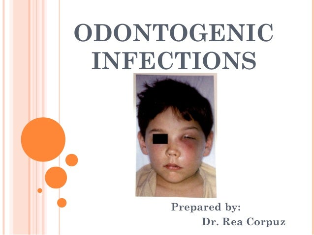 ODONTOGENIC INFECTIONS     Prepared by:          Dr. Rea Corpuz