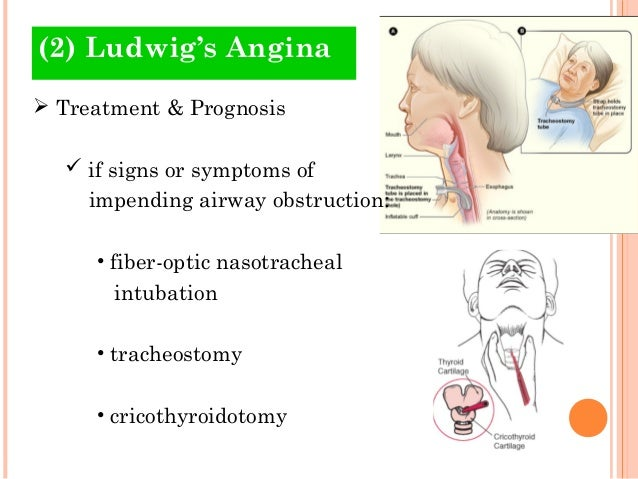 odontogenic infections (4), Skeleton