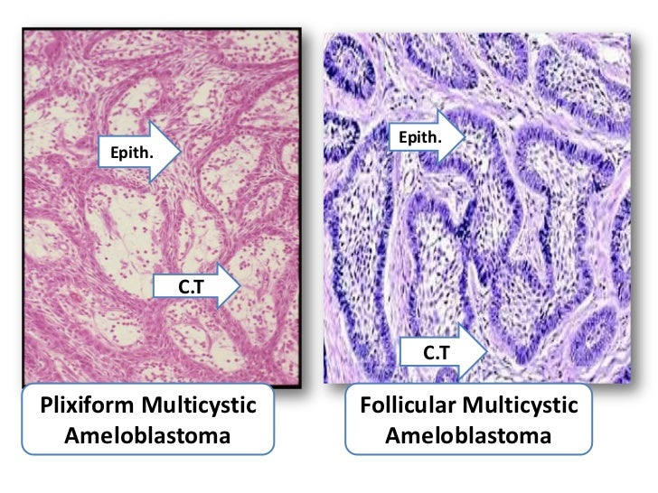 Odontogenic tumors