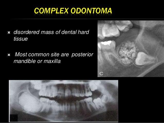 Adenomatoid Odontogenic Tumor Gross Odontogenic tumors