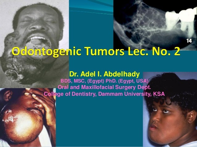 Dr. Adel I. Abdelhady BDS, MSC, (Egypt) PhD. (Egypt, USA)  Oral and Maxillofacial Surgery Dept. College of Dentistry, Damm...