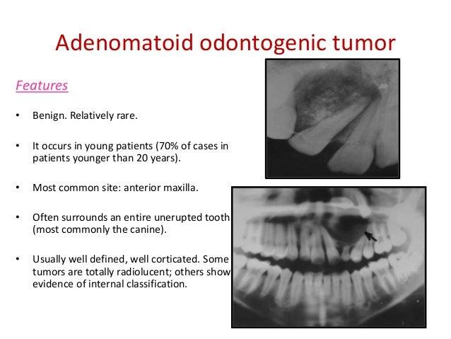 Adenomatoid Odontogenic Tumor Gross Odontogenic tumours