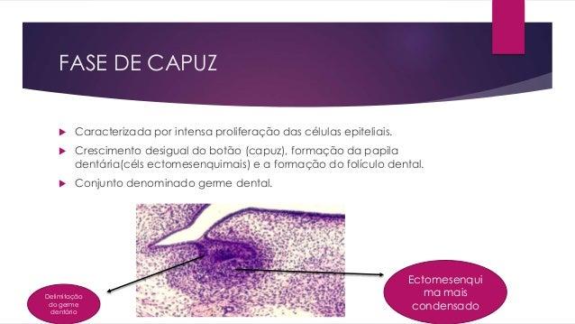 FASE DE CAPUZ  Caracterizada por intensa proliferação das células epiteliais.  Crescimento desigual do botão (capuz), fo...