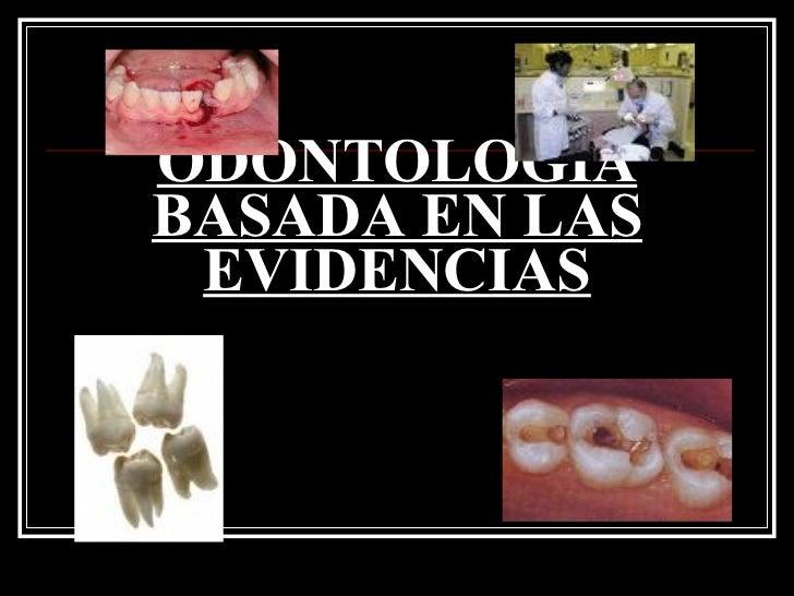 ODONTOLOGÍA BASADA EN LAS EVIDENCIAS