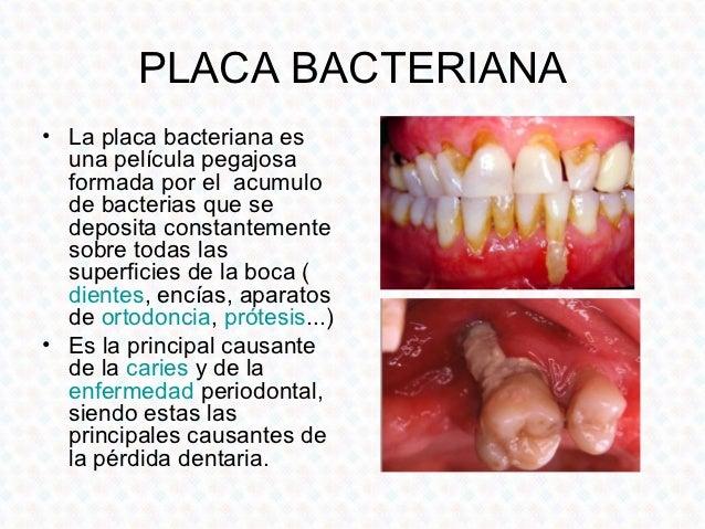 Presentación Odontologia Preventiva 9eef54e84f03