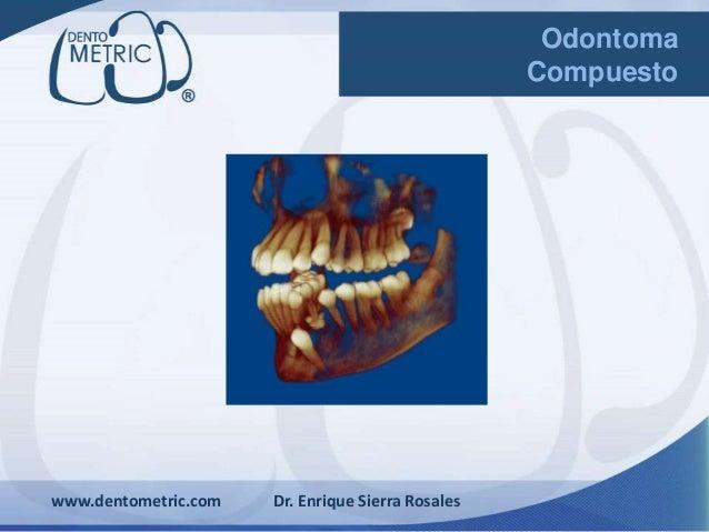 www.dentometric.com Dr. Enrique Sierra Rosales Odontoma Compuesto