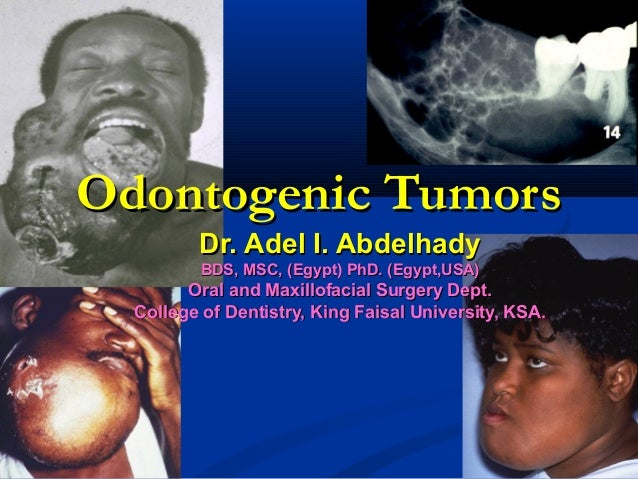 Odontogenic TumorsOdontogenic Tumors Dr. Adel I. AbdelhadyDr. Adel I. Abdelhady BDS, MSC, (Egypt) PhD. (Egypt,USA)BDS, MSC...