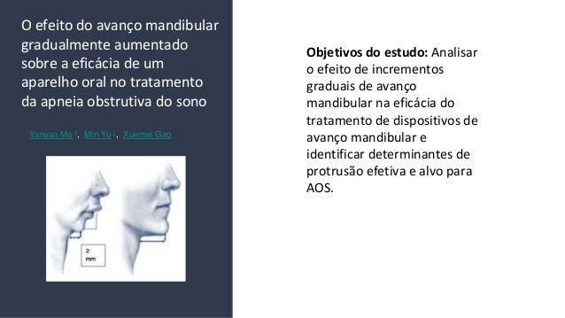 O efeito do avan�o mandibular gradualmente aumentado sobre a efic�cia de um aparelho oral no tratamento da apneia obstruti...