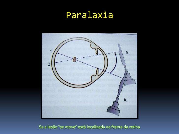Lente asférica 20 D           Mais usada           Campo visual 46 a 60º           Magnificação 3.13 x           Exame...