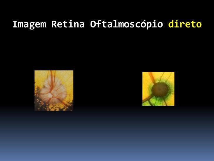 Lente asférica 40 D           Pupilas pequenas           Campo visual 69 a 90º           Magnificação 1.67 x          ...