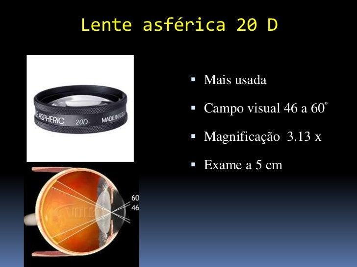 Imagem Retina Oftalmoscópio indireto