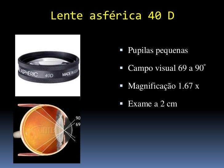Material adicional Gaze estéril    Uma para cada olho Cotonetes Solução fisiológica estéril Anestésico local (Anestal...