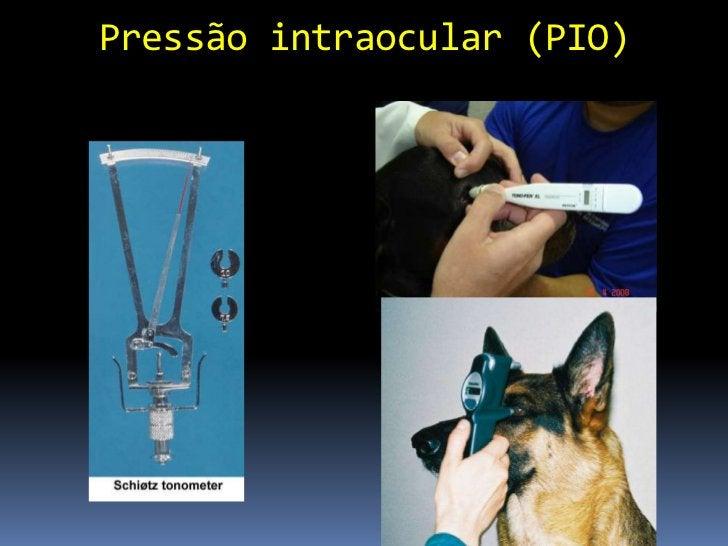 Sistema Lacrimal                 Filme lacrimal Secreção (harmonia entre as camadas) Espalhamento Drenagem