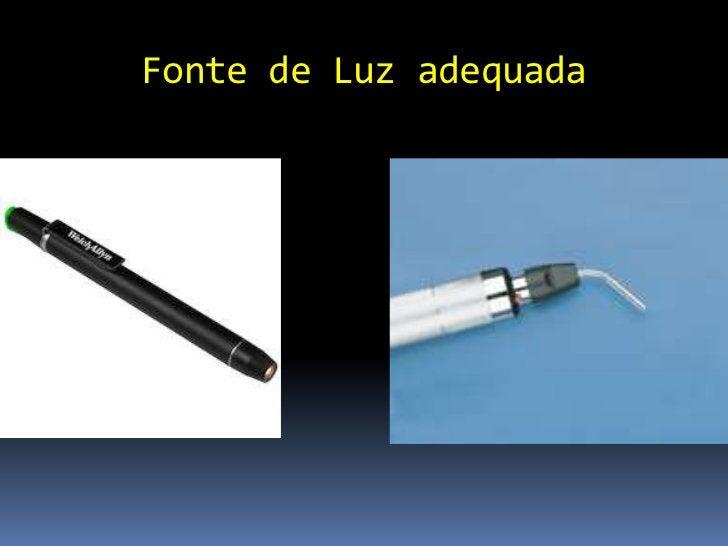 Fluoresceína É o corante mais usado Não penetra epitélio lipofílico normal corneano Avalia a integridade epitelial (pen...
