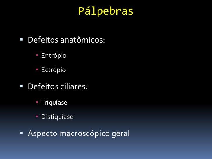 Sistema Lacrimal Teste de Jones      Teste de patência do ducto nasolacrimal;      Notar a presença de fluoresceína nas...