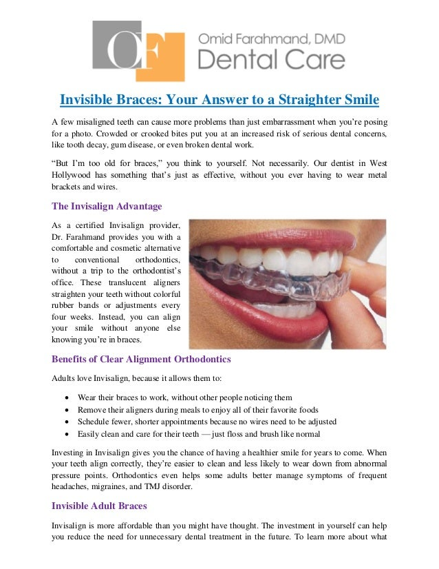 Invisible braces your answer to a straighter smile invisible braces your answer to a straighter smile a few misaligned teeth can cause more solutioingenieria Choice Image
