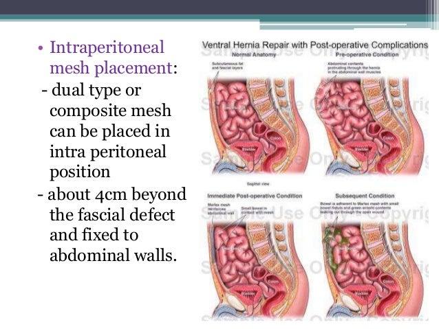 Ventral hernias