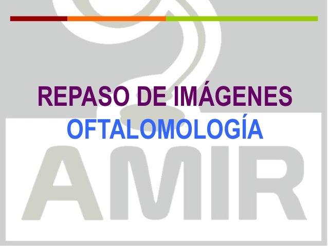 REPASO DE IMÁGENES OFTALOMOLOGÍA