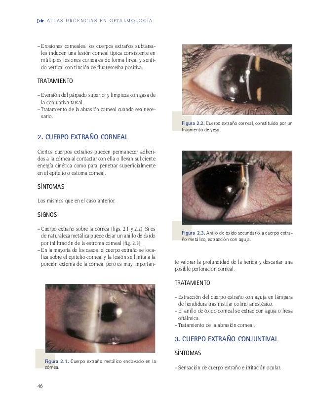 Oftalmologia vol 1 atlas 1 atlas Oftalmologia urgencias 1 urgencias Oftalmologia vol vol tBshrQdCx