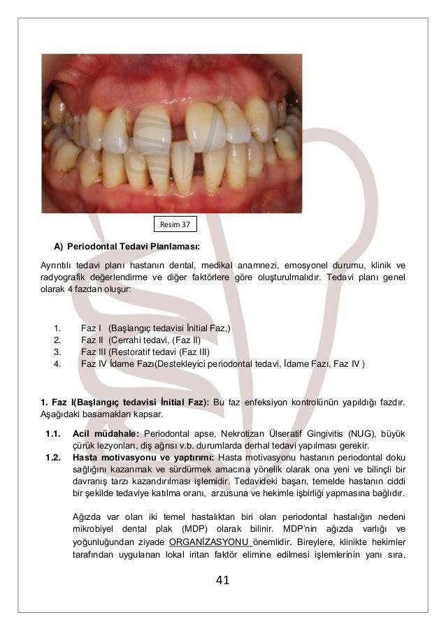 Dişlerin periodontitis - ne oldu Bebeklerin periodontitisleri: sebepler, semptomlar ve tedavi özellikleri 53