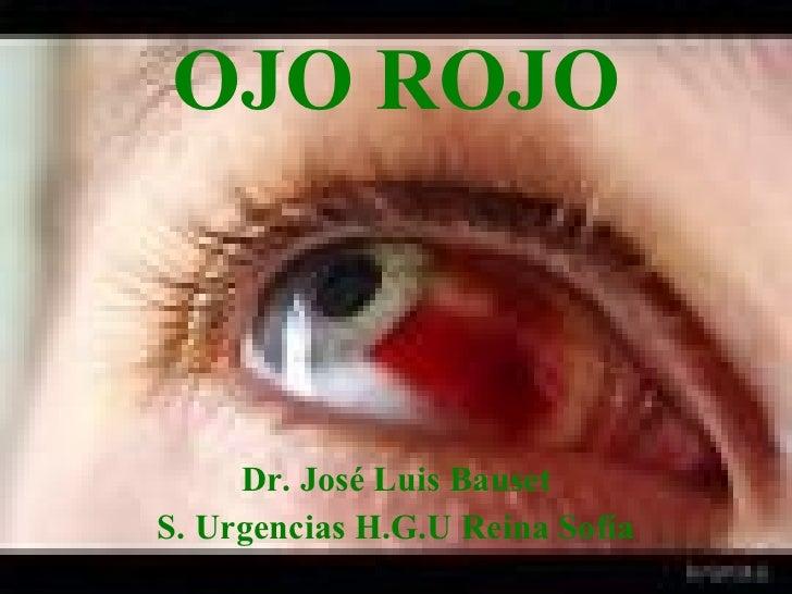 OJO ROJO Dr. José Luis Bauset S. Urgencias H.G.U Reina Sofía