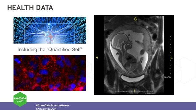 """#OpenDataScienceMeans #AnacondaCON HEALTH DATA Including the """"Quantified Self"""""""