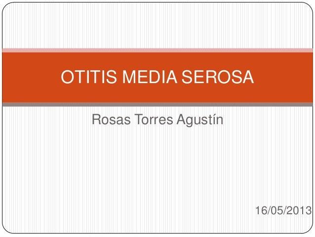 Rosas Torres Agustín16/05/2013OTITIS MEDIA SEROSA