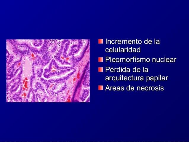 Neurocitoma ExtraventricularNeurocitoma Extraventricular ICD-O 9506/1ICD-O 9506/1 OMS GRADO IIOMS GRADO II Tumores bienTum...