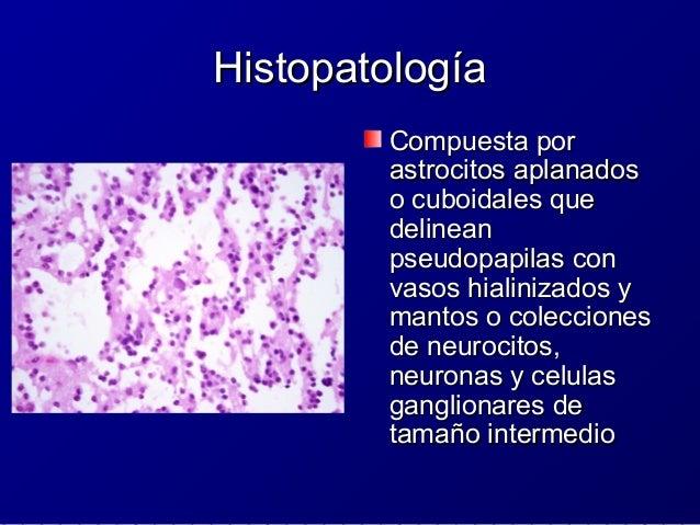 Inmunohistoquímica e IndiceInmunohistoquímica e Indice ProliferativoProliferativo Sinaptofisina es elSinaptofisina es el m...