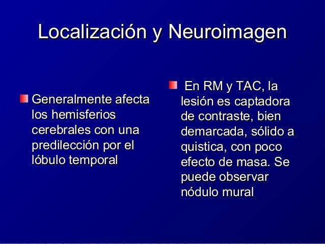 Tumor Glioneuronal Formador deTumor Glioneuronal Formador de Rosetas del Cuarto VentriculoRosetas del Cuarto Ventriculo IC...