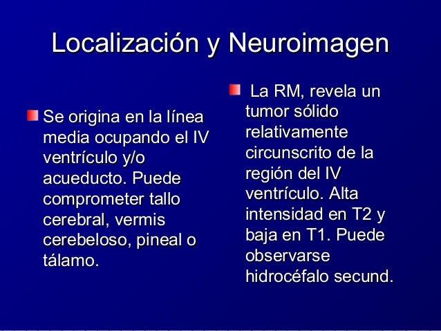 Tumor Papilar de la Región PinealTumor Papilar de la Región Pineal ICD-O 9395/3ICD-O 9395/3 OMS GRADO II/IIIOMS GRADO II/I...