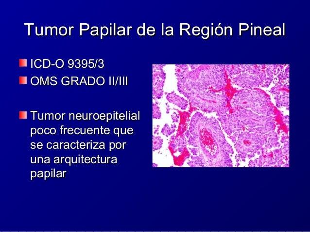 Inmunohistoquímica e IndiceInmunohistoquímica e Indice ProliferativoProliferativo ExpresaExpresa citoqueratinascitoquerati...