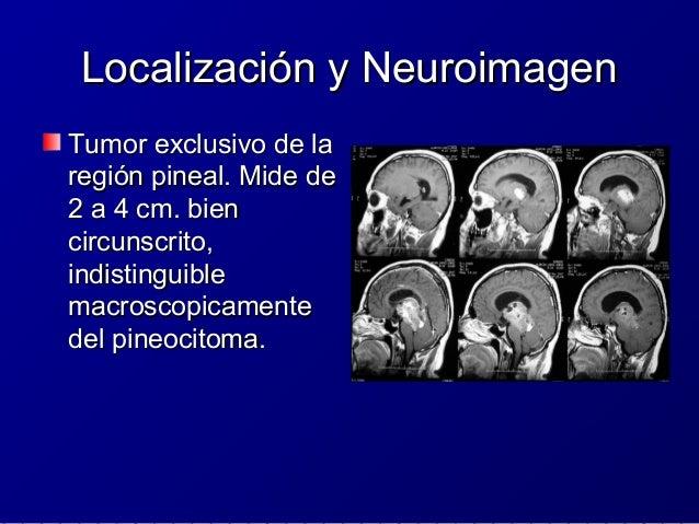 PituicitomaPituicitoma ICD-O 9432/1ICD-O 9432/1 OMS GRADO IOMS GRADO I Neoplasia glialNeoplasia glial fusocelular de bajo ...